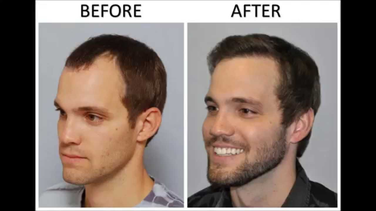Before & After Hair Transplant: Creating more density ... Will Arnett Hair Transplant Before And After