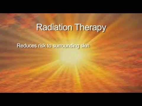A new, revolutionary treatment for non-melanoma skin cancer - superficial radiation therapy - SRT100
