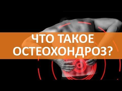 🔵Все об остеохондрозе | Cемейный доктор