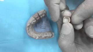 Видео о том, как правильно устанавливают коронки.(Зуб обтачивается немного поуже от своего общего кругового диаметра, получается непрерывное кольцо. Кольцо..., 2016-03-24T15:51:39.000Z)