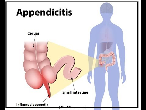 All the basics Reasons .Cancer of the Appendix||Introduction to Cancer Biology (Full Documentary)