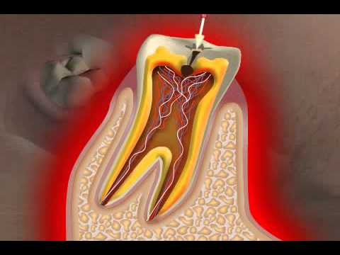 What is Caries?