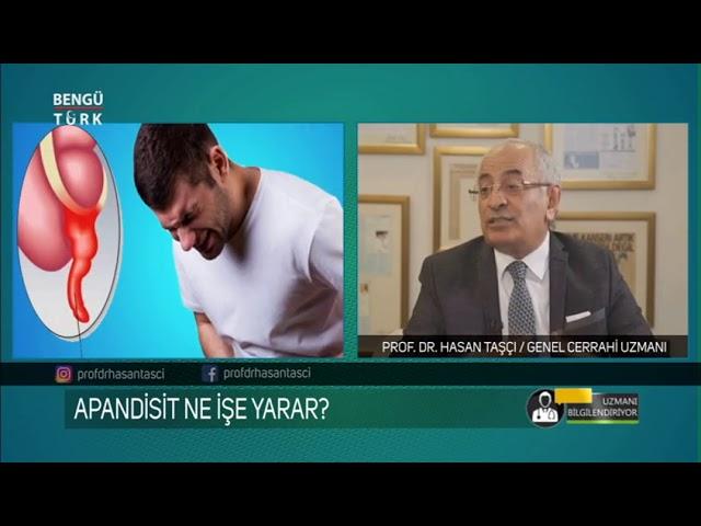 Apandisitin Belirtileri Nelerdir? Prof. Dr. Hasan Taşçı bilgilendiriyor...