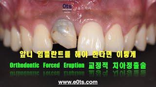 앞니 임플란트치료하려면 이렇게, 교정적 치아 정출술 O…