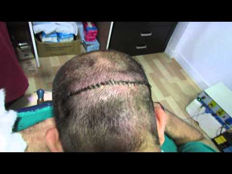 Hair Transplant in Bangalore at New You Hair Clinic Dr. Kishore Babu Pentyala