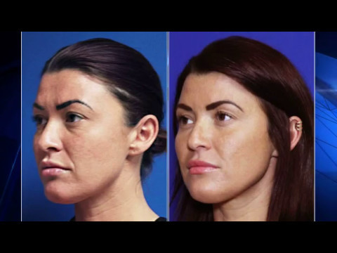 Vollure Facial Filler   Plano and Frisco, TX   Wrinkle Reduction