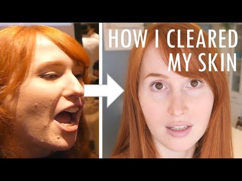 How I cleared my skin