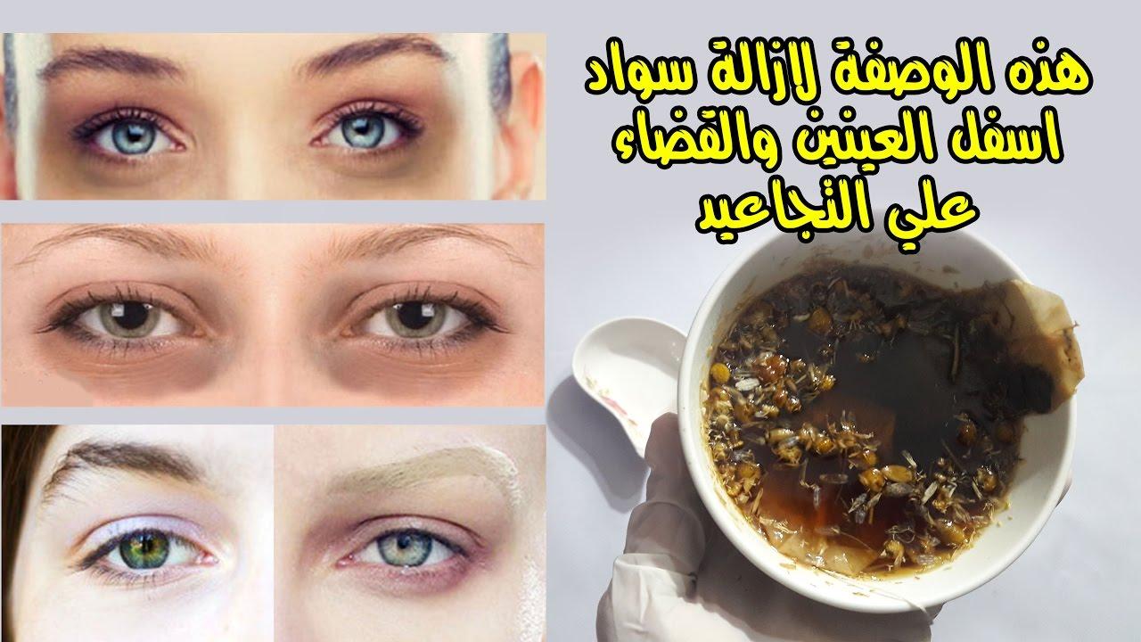 اقوي وصفة لازالة سواد اسفل العينين والم العينين وشد الجفن باستخدام فتيل الشاي Youtube
