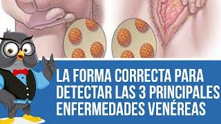 Médicos suplican: Aprender la forma correcta para detectar las 3 principales enfermedades venéreas thumbnail