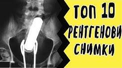 Топ 10: Странни Рентгенови Снимки