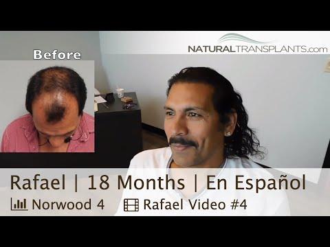 Trasplante De Pelo En Miami | Transplante De Cabello - En Español (Rafael)