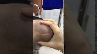 Patient KD Movement