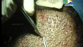 Hair transplant, Morning News, 13.12.2014, Jaihind TV