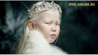 Ураты кэрэлээх альбинос-кыыс Нарияна. Фотограф Вадим Руфов.