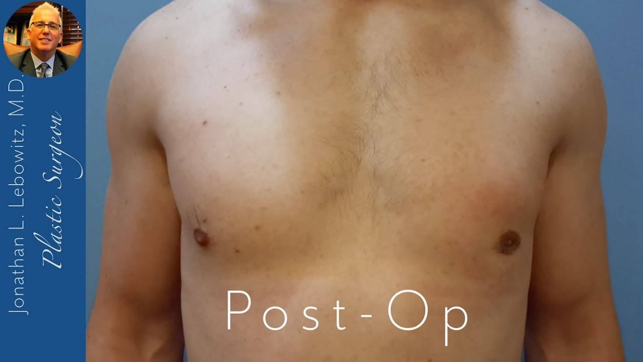 how to get rid of gynecomastia without surgery