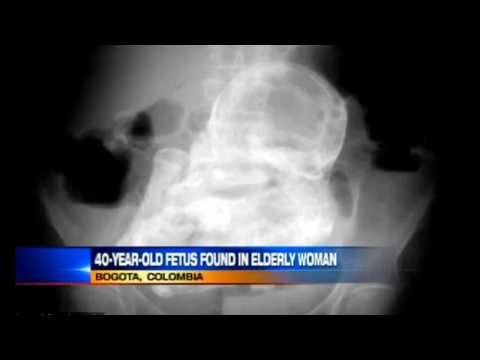 40- Year Old -Stone Baby Found in 84 Year Old Woman