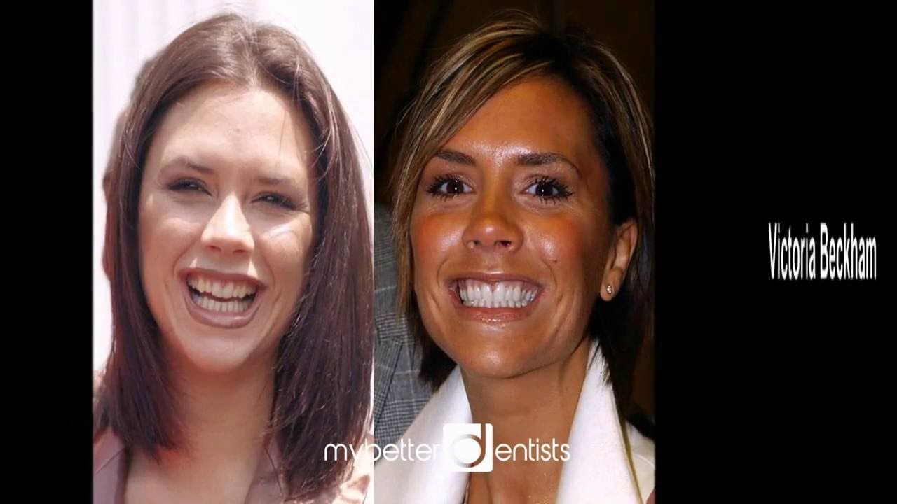Celeb teeth makeovers - YouTube