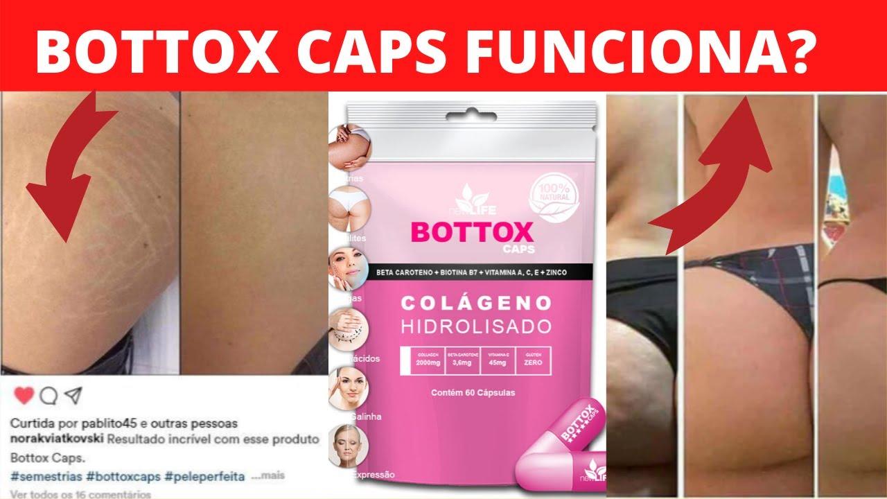 bottox caps