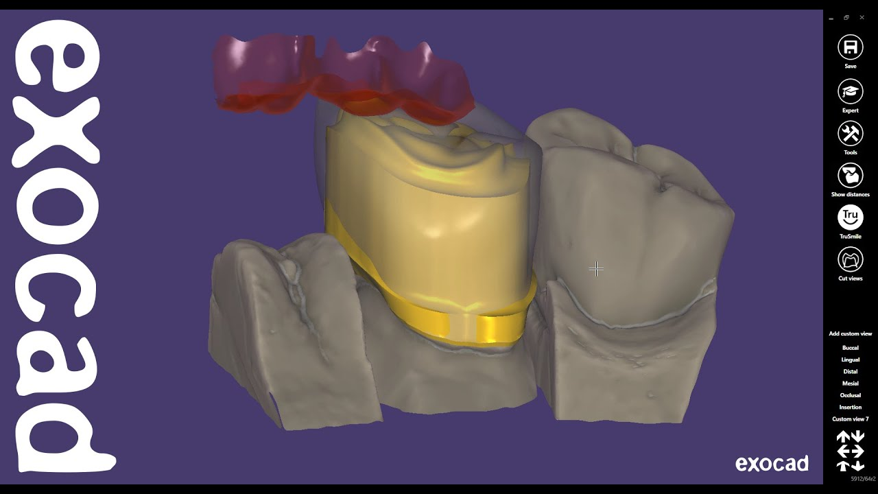 exocad Quick Guide: Advanced Telescopic Crown Design with Cutback