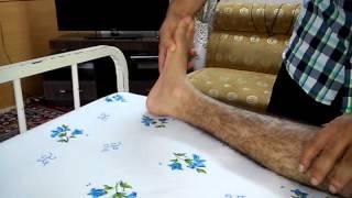 Ankle clonus