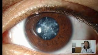 Retropupillary iris-claw IOL in ectopia lentis in Marfan syndrome – Video abstract 106382