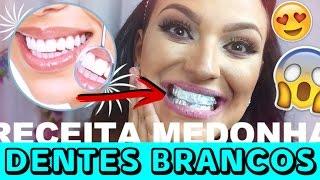 Misture 2 Ingredientes e Passe nos Dentes – Resultado: Dentes Brancos como Nunca