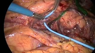 Azagra JS: Laparoscopic distal pancreatic surgery