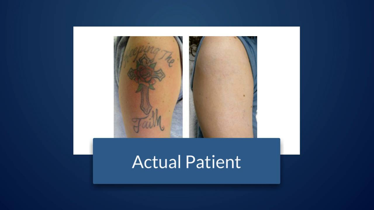 Does Laser Tattoo Removal Really Work West Palm Beach FL
