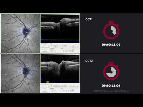 SPECTRALIS OCT1 vs. OCT2: Glaucoma – ONH Circle Scan