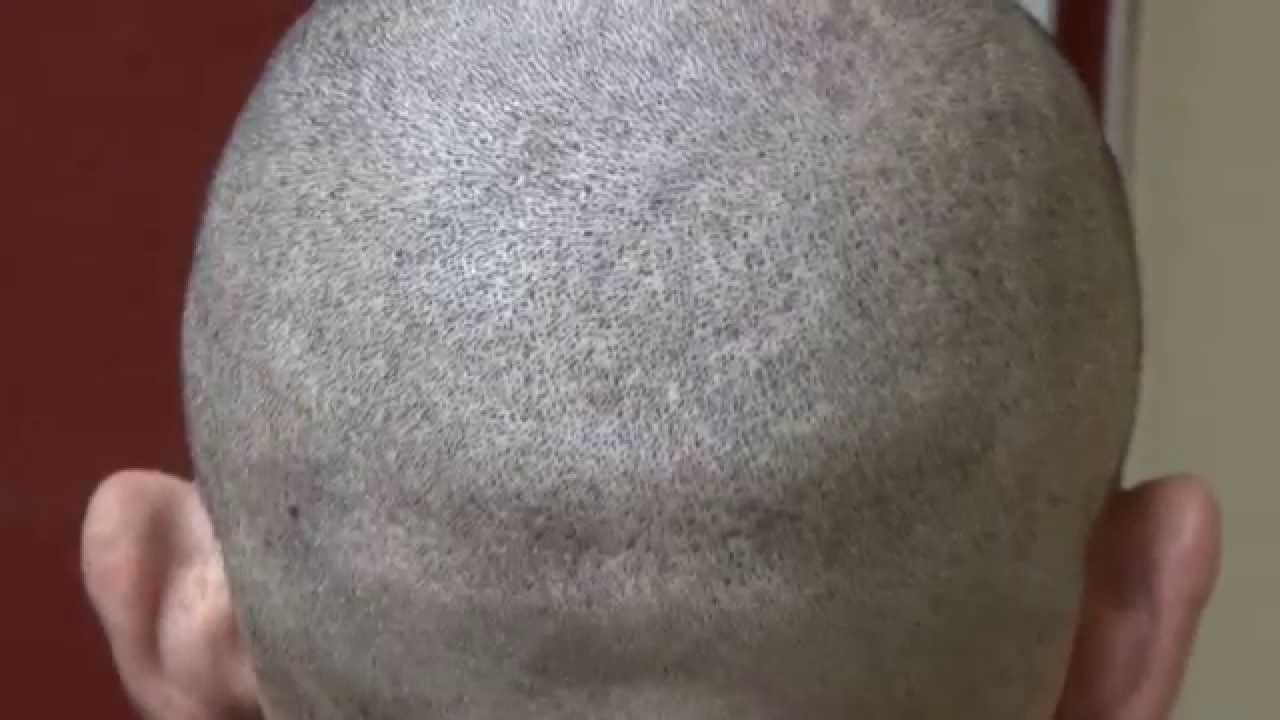 Seen this Hair transplant scar shaved bonne