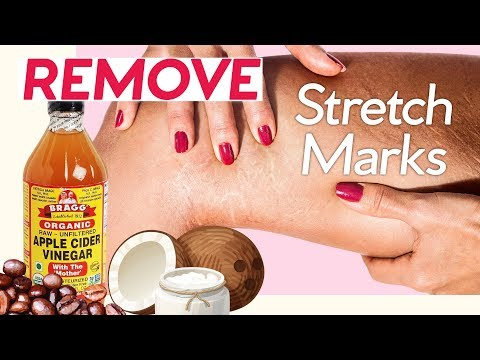 How to Get Rid of Stretch Marks! 7 Natural Ways + 4 Pressure Points