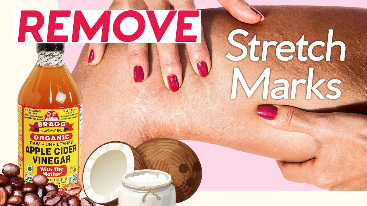 How To Get Rid Of Stretch Marks 7 Natural Ways 4 Pressure