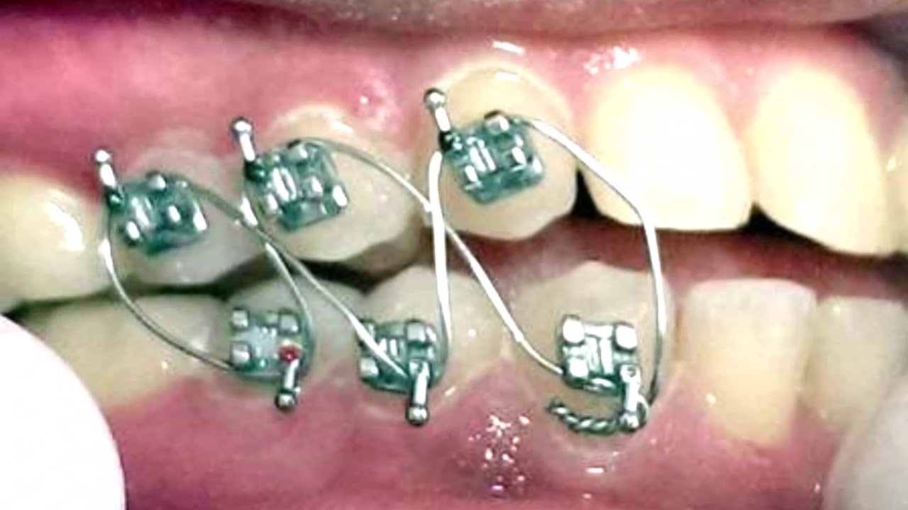 OJWforWeightControl Orthodontic Jaw Wiring No Surgery or ... on jaw clutch, jaw suspension, jaw splint, jaw socket, jaw wired shut, jaw parts, jaw diagram, jaw surgery procedures,