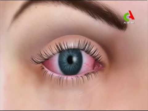 symptomes fatigue oculaire