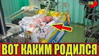 Мать всю беременность пила энергетические напитки. Вот каким родился её сын.