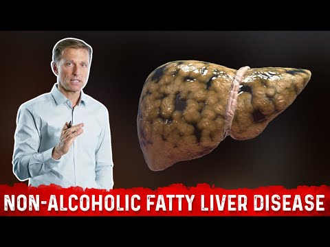 The REAL Cause of Non Alcoholic Fatty Liver Disease (NAFLD)