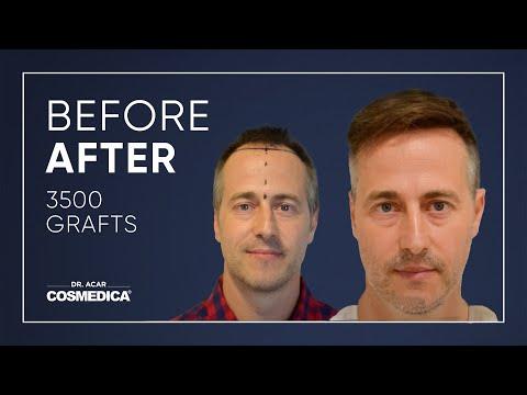 COSMEDICA DR.ACAR ,3500 Grafts  FUE Hair Transplant,Turkey-Istanbul