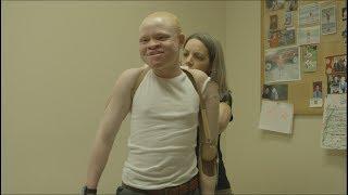 Tanzanian albino children get new limbs in U.S.