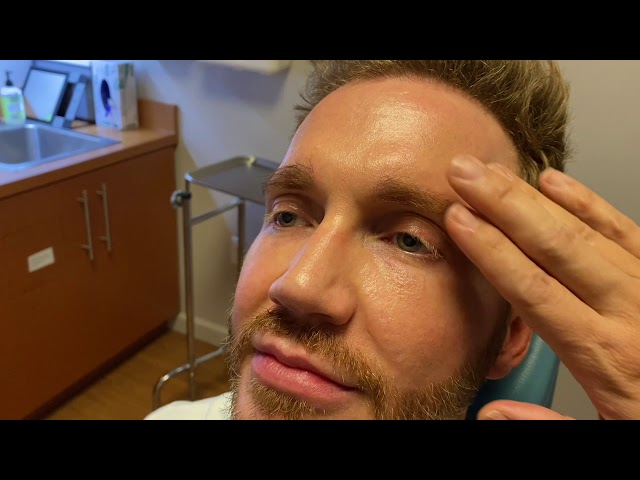 Dallas FUE Hairline and Eyebrows Hair Transplant and Beard to Beard FUE Hair Transplant Close-Up