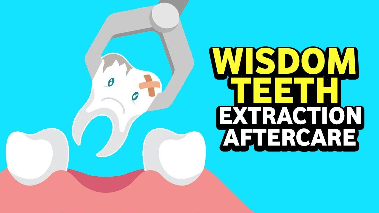 Can You Drink Coffee After Tooth Extraction? All The
