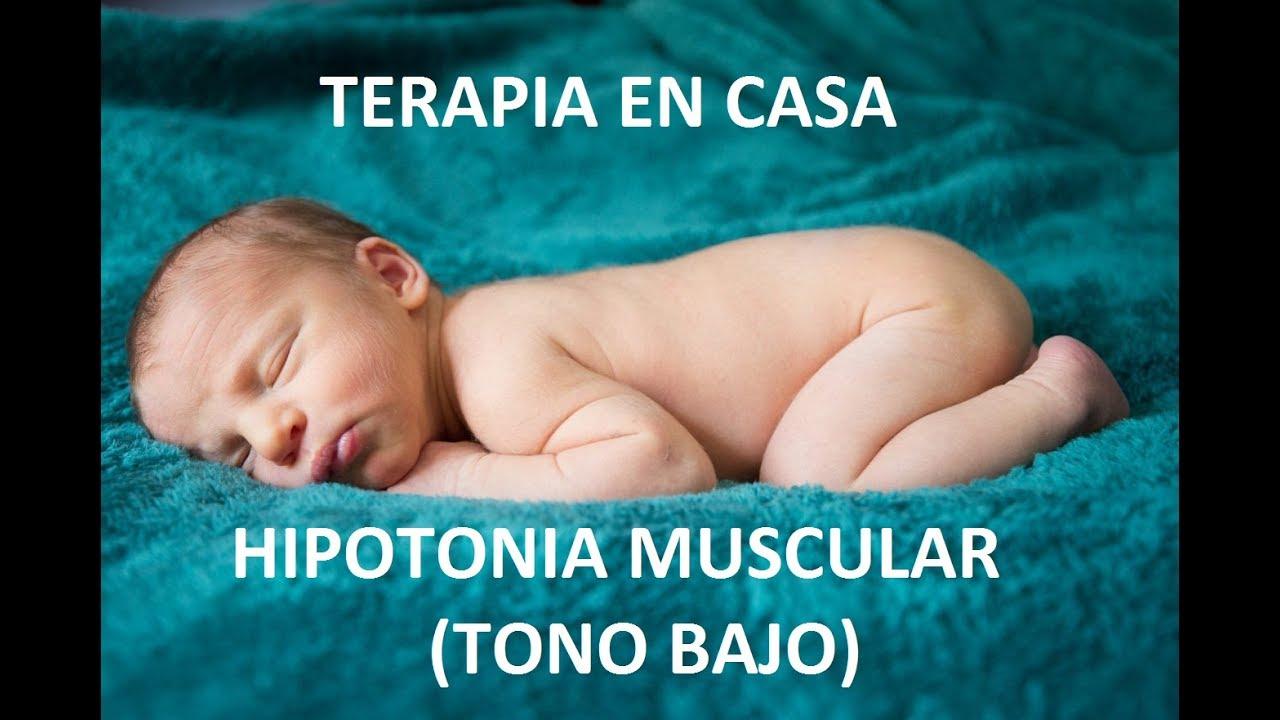 Que es una hipertonia muscular