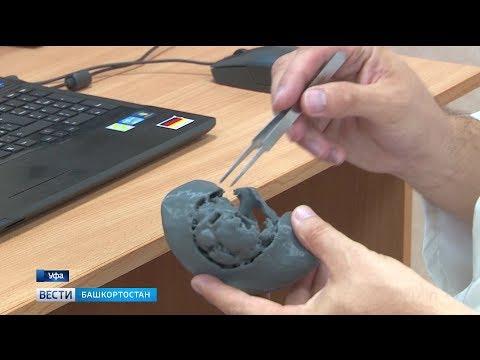 В Уфе провели операцию с использованием 3D модели почки