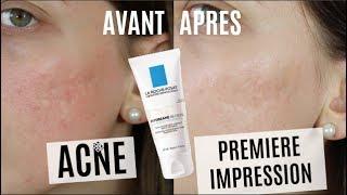 ACNE : Une journée avec la BB Crème La Roche Posay (Test + 1ère Impression)