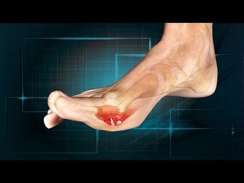 Turf Toe: Causes, Symptoms, Treatment