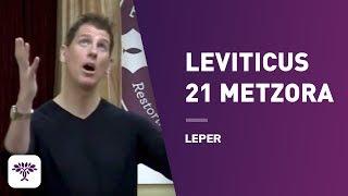 """Leviticus 21 Metzora /  """" Leper """" 04.25.14"""