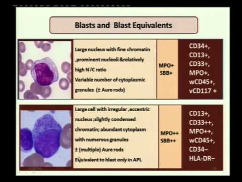 2nd Lecture   Acute Myeloid Leukemia