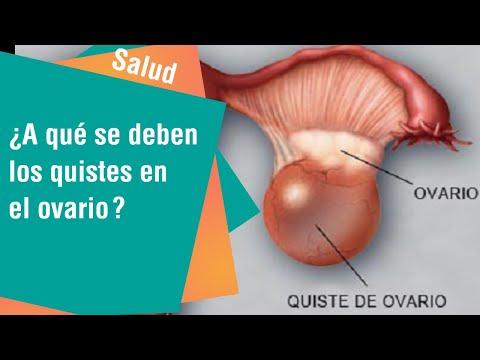 ¿A qué se deben los quistes en el ovario?