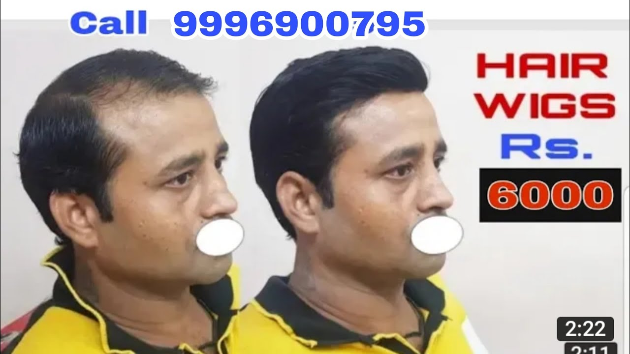 9958962040 hair wigs in chandigarh hair weaving in chandigarh 9958962040 hair wigs in chandigarh hair weaving in chandigarh hair wigs rs 5000 pmusecretfo Choice Image
