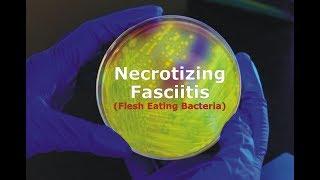 Necrotizing Fasciitis - Flesh Eating Bacteria