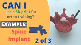 Can I use a 3D print for orthopedic training in a pinch? Example 2: Step 2 of 3